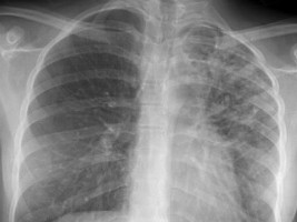 iciHaiti - Health : 16,234 cases of tuberculosis in the country