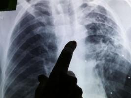 iciHaïti - Santé : Objectif zéro cas de tuberculose à l'horizon 2030