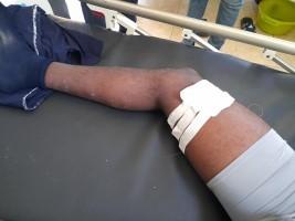 iciHaïti - Petit-Goâve : Manifestation et violence, un élève blessé par balle