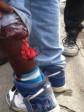 iciHaiti - DR : A Haitian severely bitten by a Pitbull